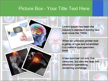 Bones X-Ray PowerPoint Templates - Slide 23