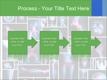 Bones X-Ray PowerPoint Template - Slide 88