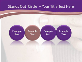 Irritation PowerPoint Template - Slide 76