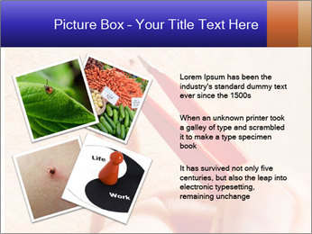 Lyme Disease PowerPoint Template - Slide 23