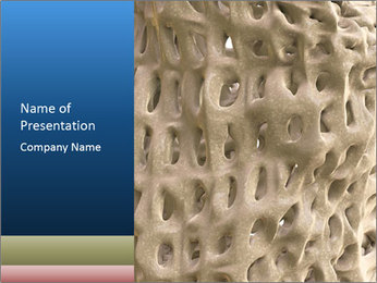 Osteoporosis PowerPoint Template - Slide 1