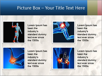 Osteoporosis PowerPoint Template - Slide 14