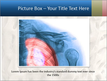 Osteoporosis PowerPoint Template - Slide 16
