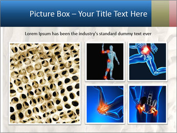 Osteoporosis PowerPoint Template - Slide 19