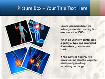 Osteoporosis PowerPoint Template - Slide 23