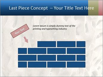 Osteoporosis PowerPoint Template - Slide 46