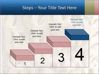 Osteoporosis PowerPoint Template - Slide 64