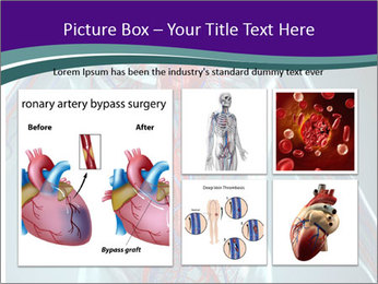 Heart System PowerPoint Template - Slide 19