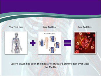 Heart System PowerPoint Templates - Slide 22