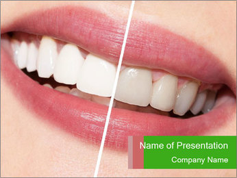 Teeth Whiten PowerPoint Template - Slide 1