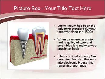 Teeth Model PowerPoint Template - Slide 13