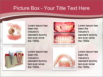 Teeth Model PowerPoint Template - Slide 14
