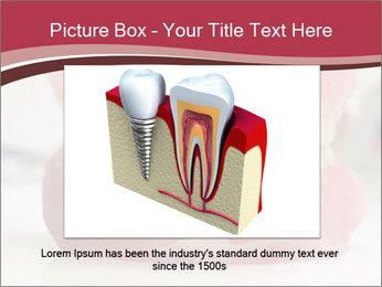 Teeth Model PowerPoint Template - Slide 15
