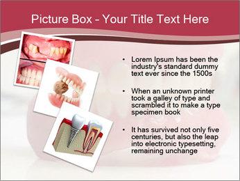 Teeth Model PowerPoint Template - Slide 17