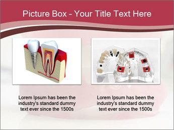 Teeth Model PowerPoint Template - Slide 18