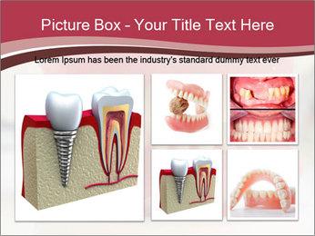 Teeth Model PowerPoint Template - Slide 19