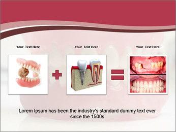 Teeth Model PowerPoint Template - Slide 22