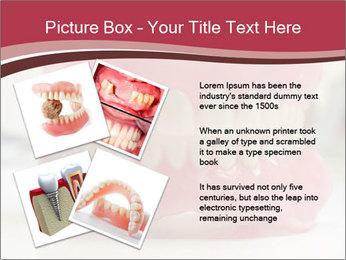 Teeth Model PowerPoint Template - Slide 23