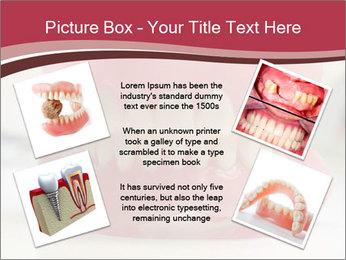 Teeth Model PowerPoint Template - Slide 24