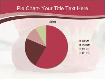 Teeth Model PowerPoint Template - Slide 36