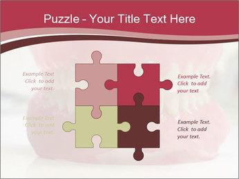 Teeth Model PowerPoint Template - Slide 43