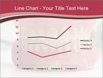 Teeth Model PowerPoint Template - Slide 54