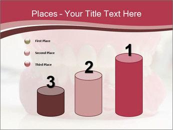 Teeth Model PowerPoint Template - Slide 65