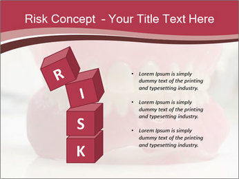 Teeth Model PowerPoint Template - Slide 81