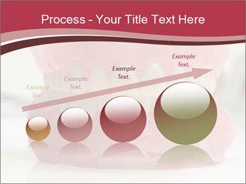 Teeth Model PowerPoint Template - Slide 87