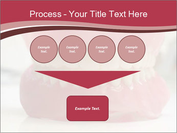 Teeth Model PowerPoint Template - Slide 93