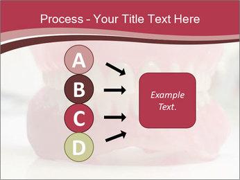 Teeth Model PowerPoint Template - Slide 94