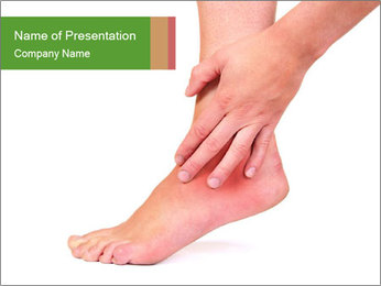 Injured Ankle PowerPoint Template - Slide 1