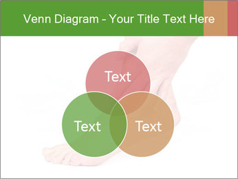 Injured Ankle PowerPoint Template - Slide 33