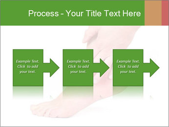 Injured Ankle PowerPoint Template - Slide 88