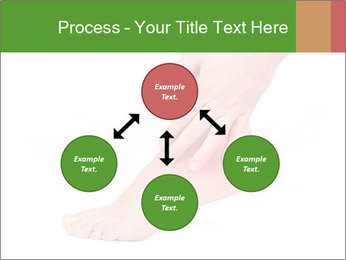 Injured Ankle PowerPoint Template - Slide 91