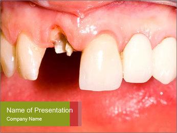 Broken front tooth PowerPoint Template - Slide 1