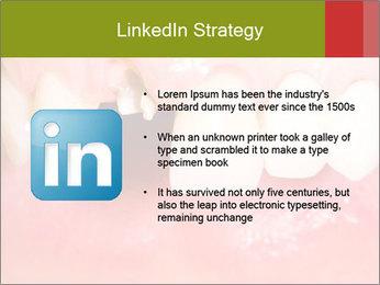 Broken front tooth PowerPoint Template - Slide 12