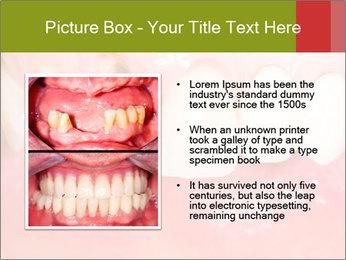 Broken front tooth PowerPoint Template - Slide 13