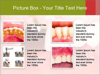 Broken front tooth PowerPoint Template - Slide 14