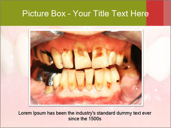 Broken front tooth PowerPoint Template - Slide 15