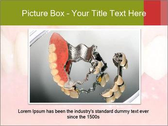 Broken front tooth PowerPoint Template - Slide 16