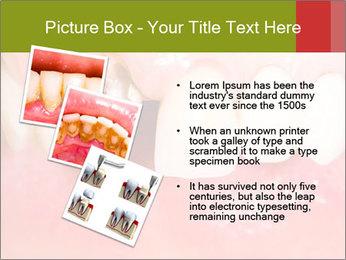 Broken front tooth PowerPoint Template - Slide 17