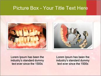 Broken front tooth PowerPoint Template - Slide 18