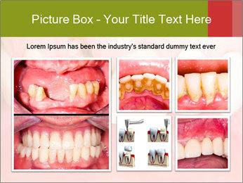 Broken front tooth PowerPoint Template - Slide 19