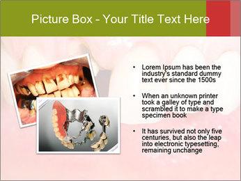 Broken front tooth PowerPoint Template - Slide 20