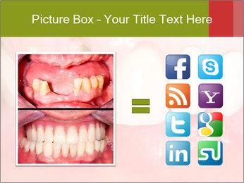 Broken front tooth PowerPoint Template - Slide 21