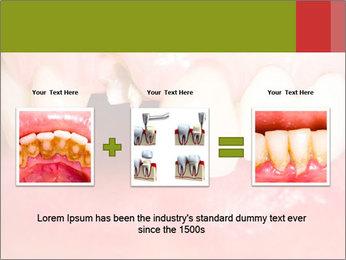 Broken front tooth PowerPoint Template - Slide 22