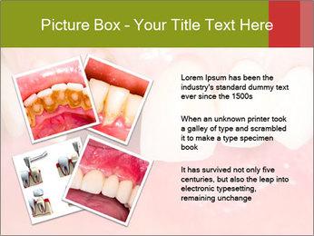 Broken front tooth PowerPoint Template - Slide 23
