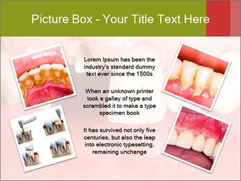 Broken front tooth PowerPoint Template - Slide 24