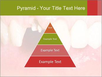 Broken front tooth PowerPoint Template - Slide 30